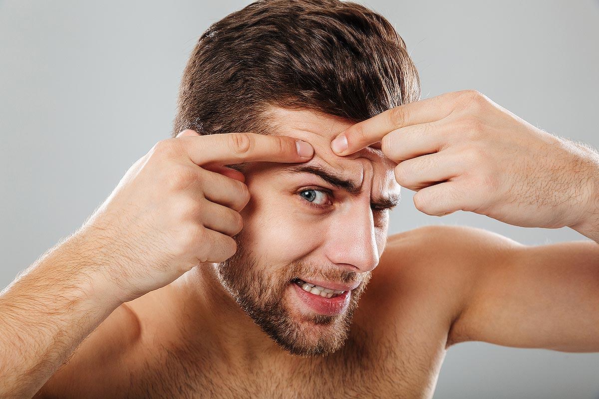 leszokni pattanások jelentek meg a homlokán